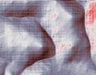 isolation endoplasmatic reticulum